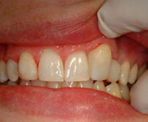 misaligned canine tooth