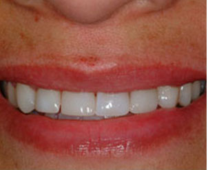 bonded teeth by Dr. Crawford