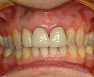 before cosmetic dental procedures by Dr. Crawford