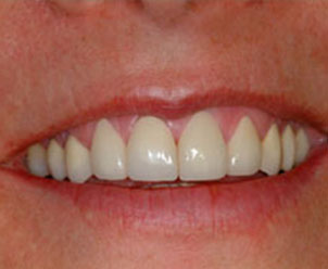 after placing Empress veneers on a patient at Implant Dentistry of Greater Lansing