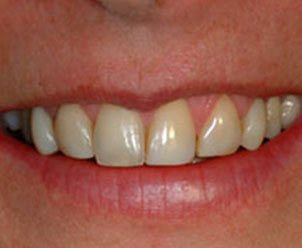 before photo of veneer candidate at Implant Dentistry of Greater Lansing