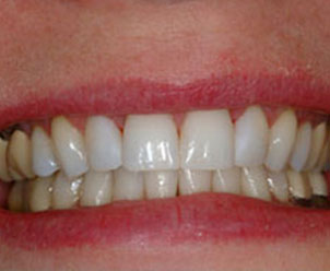 whitened teeth by Dr. Crawford