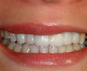 after placing veneers on Dr. Crawford's patient