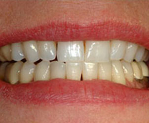 discolored teeth before veneers