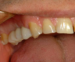 After: final Procera crowns on three implant posts