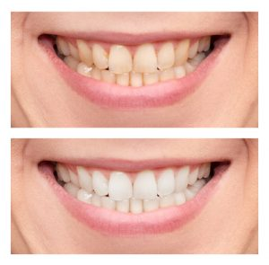 close-up of smile before and after teeth whitening